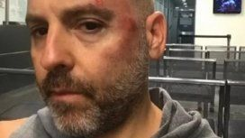 Fuerte accidente de José María Muscari en la calle cuando iba en monopatín