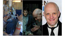 Jim Tavaré accidentado, en Harry Potter y fuera de escena