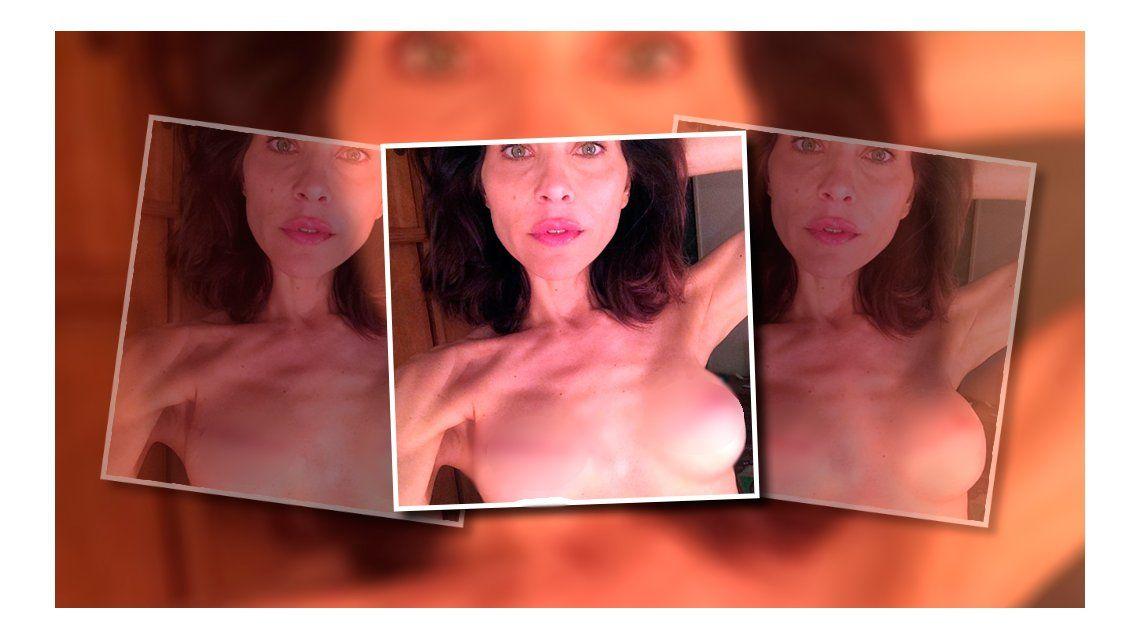 En su lucha contra el cáncer, una actriz de Pasión de Gavilanes mostró sus pechos