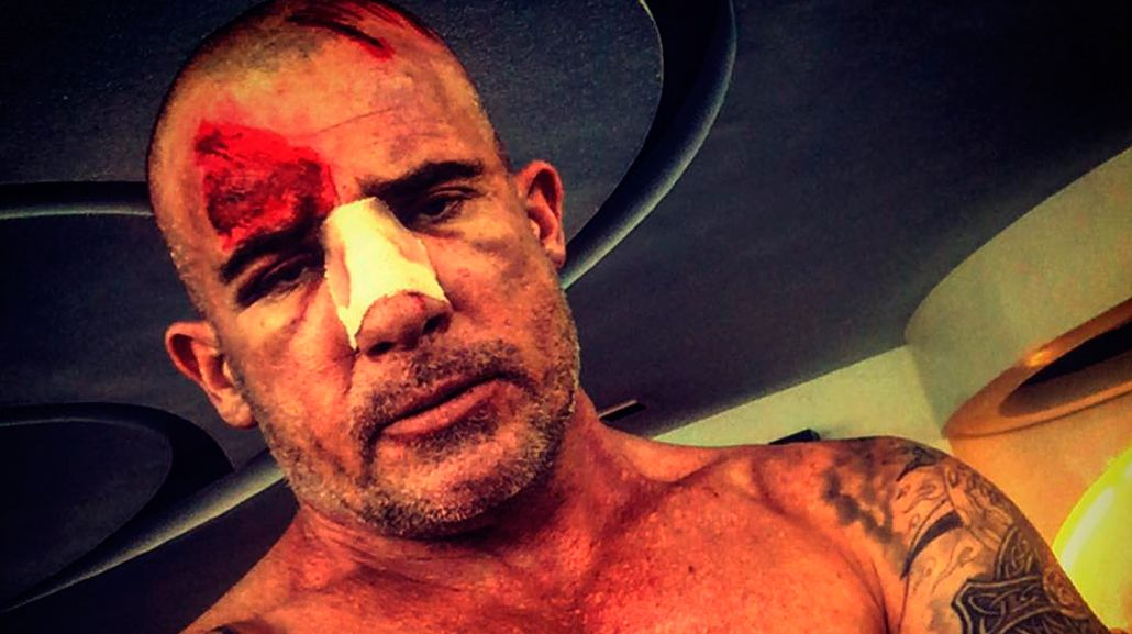 Así quedó Dominic Purcell, protagonista de Prison Break, tras un accidente en el set