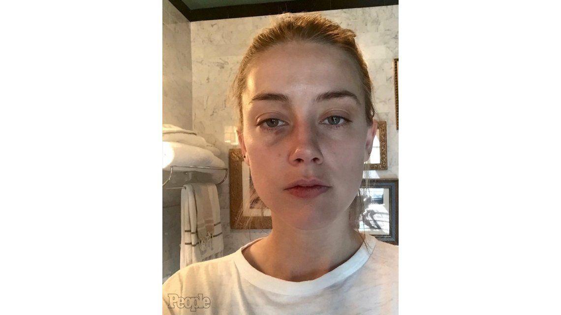 Las nuevas fotos de la mujer de Johnny Depp que comprobarían las agresiones del actor