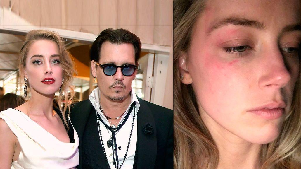Johnny Depp, denunciado por haber golpeado a su esposa: la foto que lo compromete
