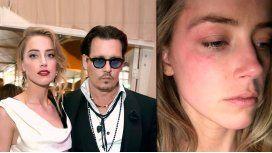 Johnny Depp, denunciado por supuestos golpes a su esposa