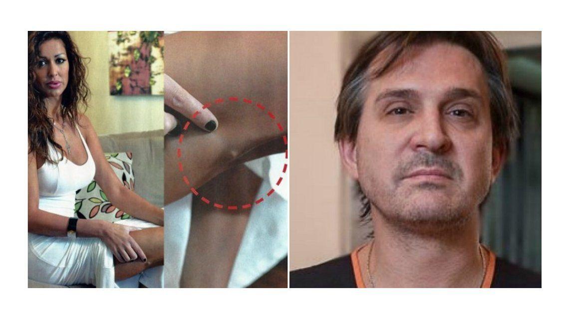Impactantes fotos de Pamela Sosa: Intenté suicidarme por culpa de Lotocki