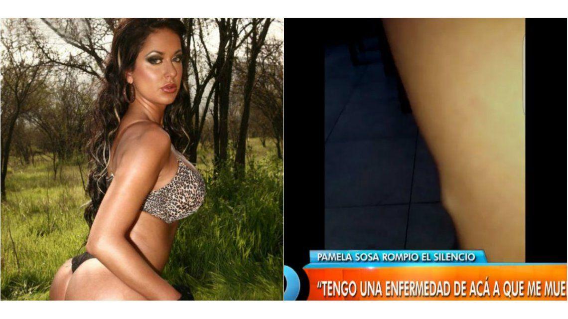 Pamela Sosa, tras denunciar a Aníbal Lotocki: Tengo una enfermedad de acá a que me muera