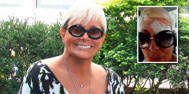 Carmen Barbieri se recupera de la operación de un tumor en el ojo