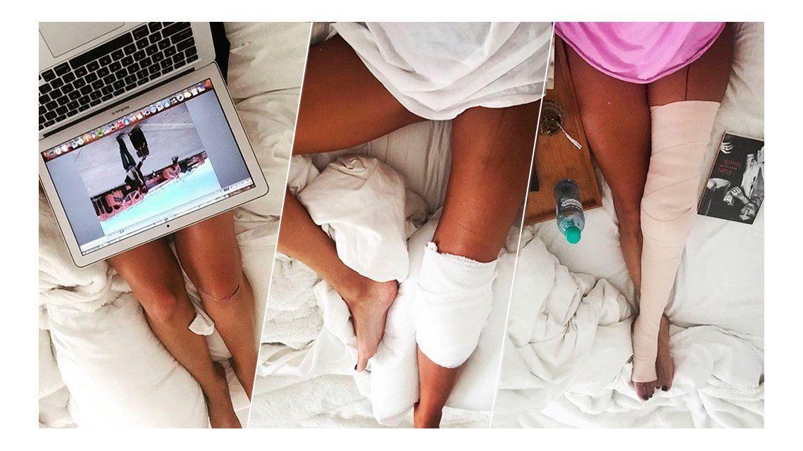 Entre algodones: recién operada y en reposo, Isabel Macedo mostró sus piernas sexies