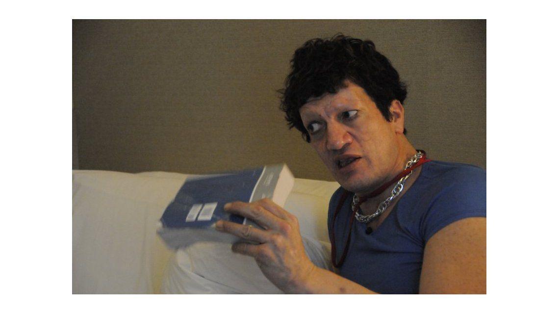 Así está hoy Pity Álvarez: rostro destrozado y sin cejas