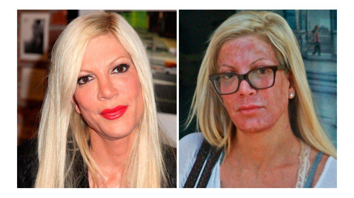 La protagonista de Beverly Hills 90210 que se desfiguró la cara