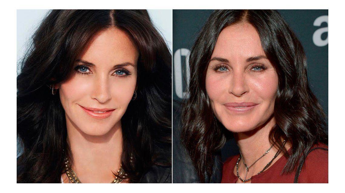 ¿Qué le pasó en la cara? El antes y el después de una actriz de Friends