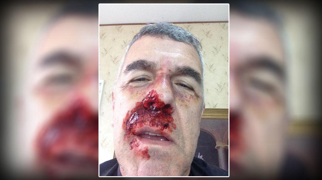 Imagen impactante: ¿Qué le pasó a Dady Brieva?