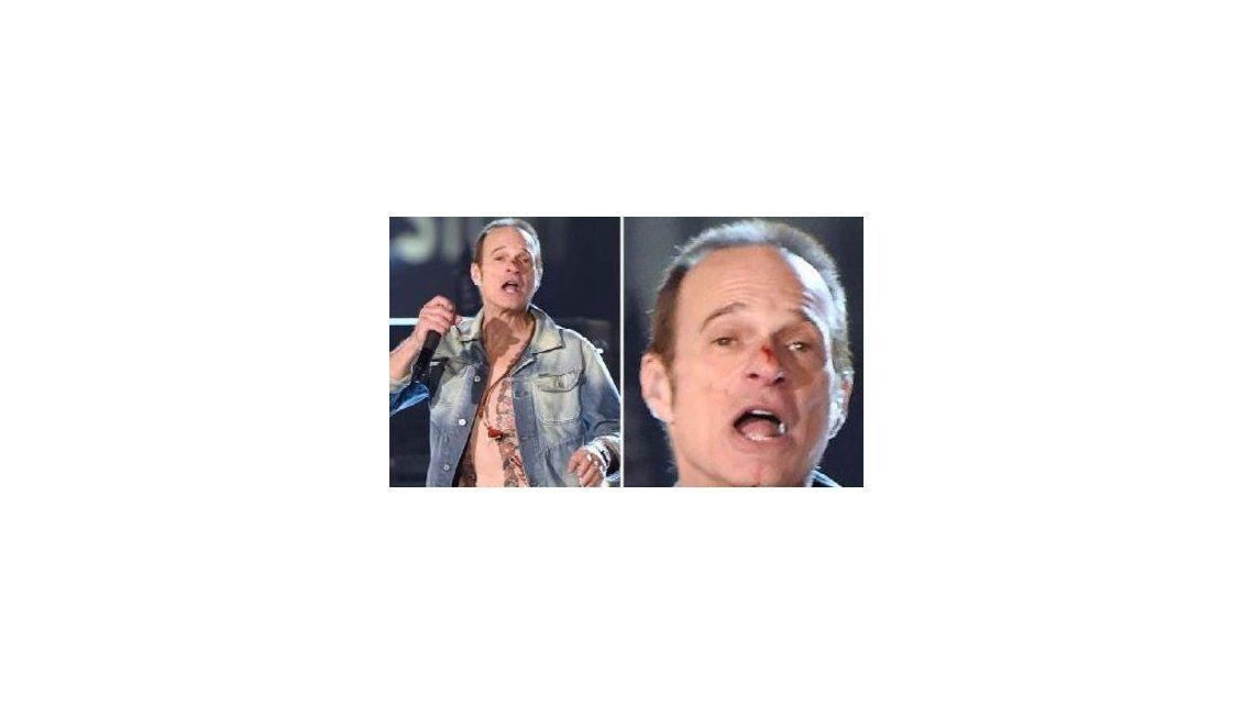El cantante de una famosa banda de rock se rompió la nariz en pleno concierto