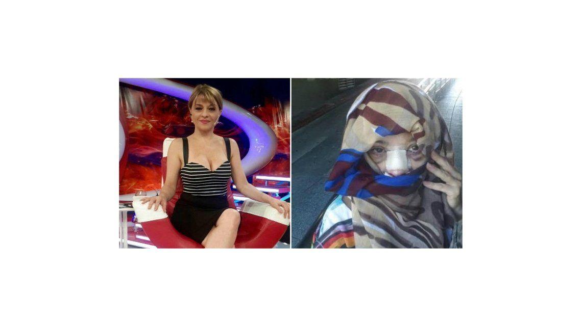 Marcela Feudale responde a quienes se burlaron de su foto tras la operación
