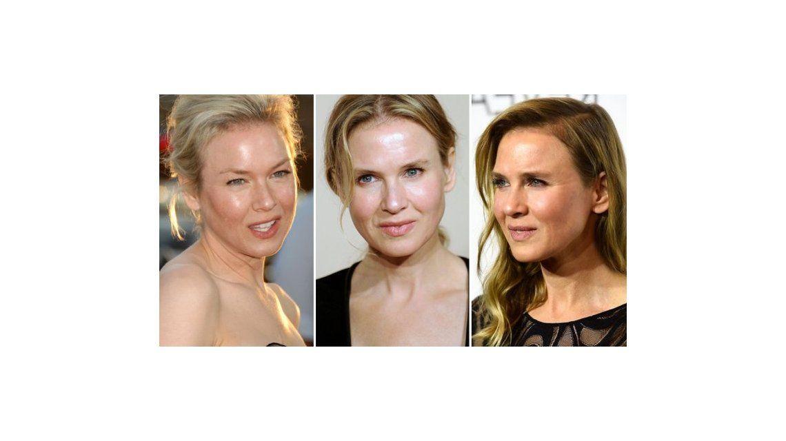 La transformación de Renée Zellweger: una nueva cirugía la dejó irreconocible