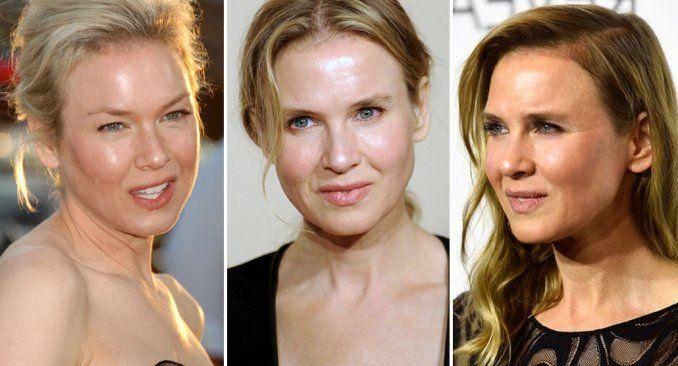 La furia de Renée Zellweger, que negó haberse operado la cara: He sido humillada
