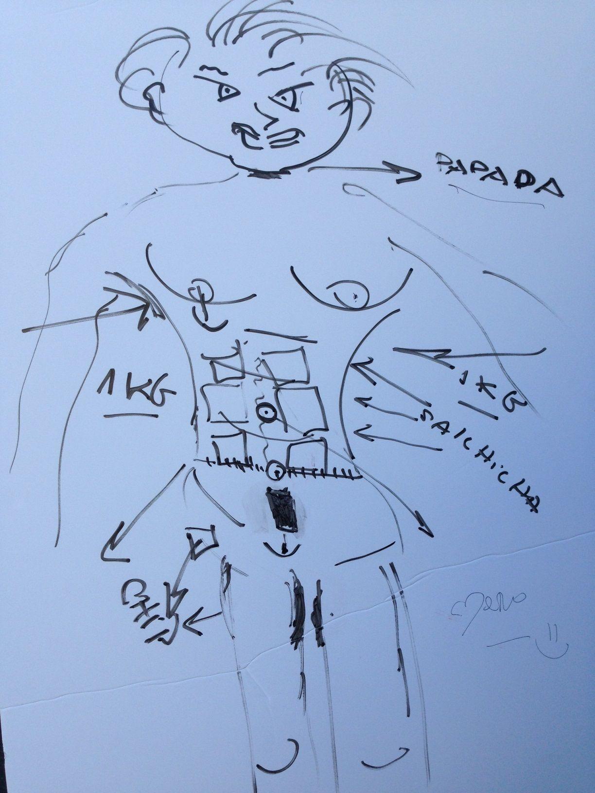 Carmen Barbieri dibujó sus cirugías: Con lo que me sacaron, hicieron otra Noelia Pompa