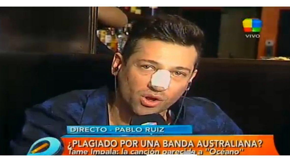El polémico postoperatorio de Pablito Ruiz: La cola siempre duele