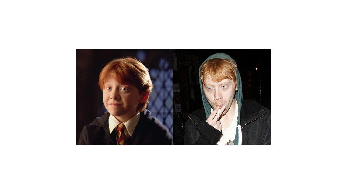 El triste antes y después de uno de los protagonistas de Harry Potter