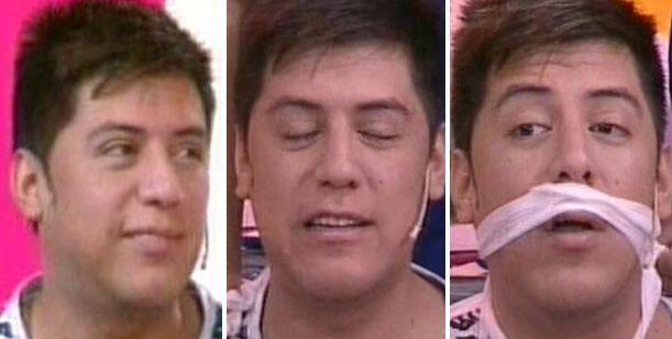 La nueva cara del fan de Wanda Nara, después de la cirugía en la cara
