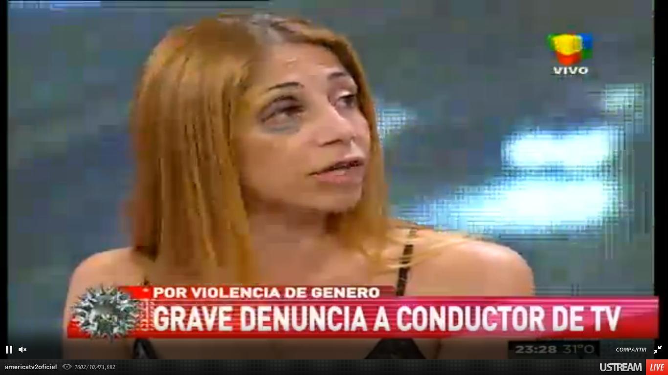 La ex de Gabriel Anello lo volvió a acusar de golpeador y mostró las impactantes heridas