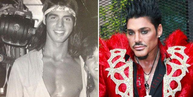 El antes y el después de Ricardo Fort