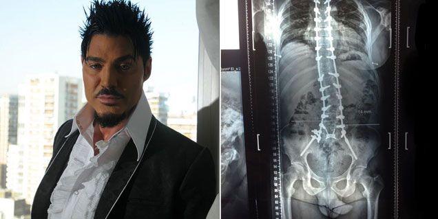 Una vida de cirugías y calmantes: así tenía su cuerpo Fort antes de morir