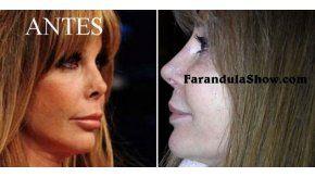 El antes y el después de la nariz de Graciela Alfano. (Fotos: Web y Farandulashow.com)